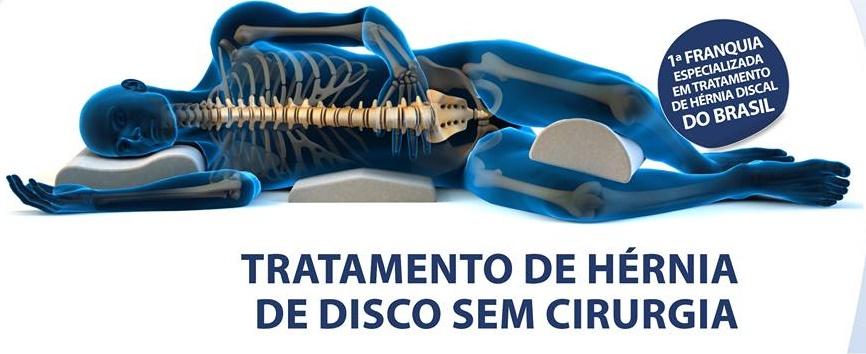 doutor-hernia-franquia
